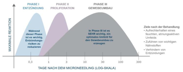 skinpen-microneedling-freiburg